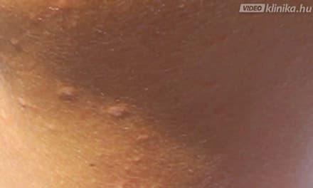 AGGODALMAK A HPV MIATT