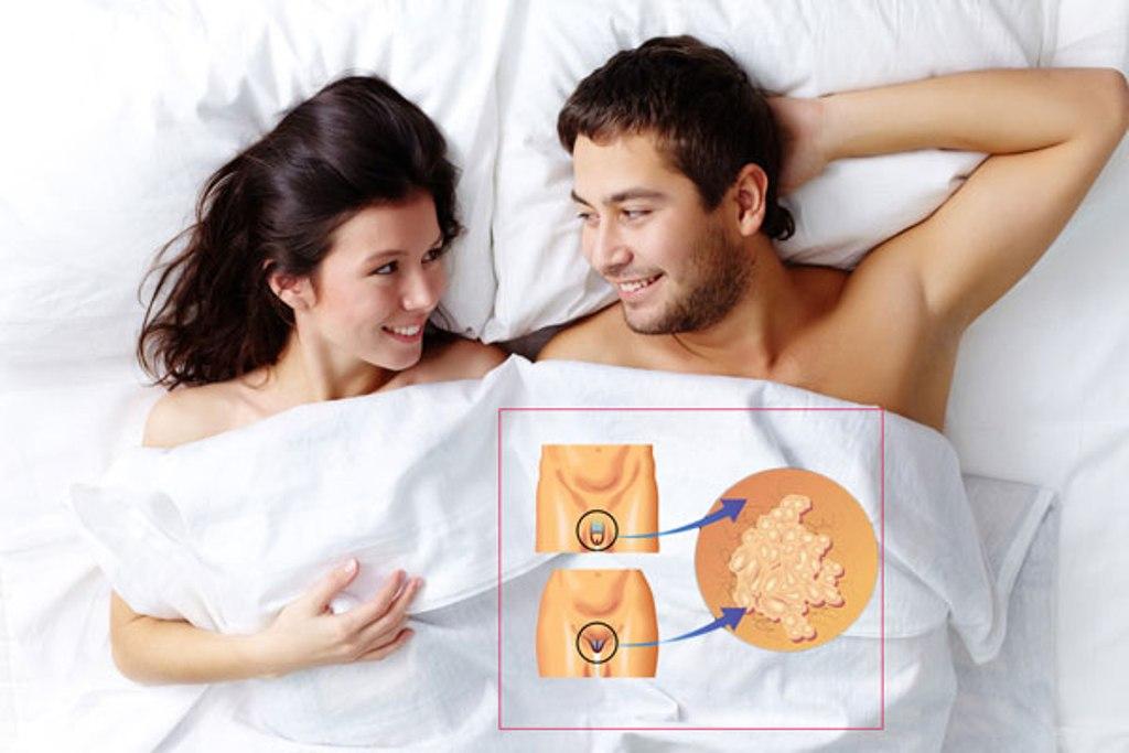 papillómák az ágyék területén kell elvégezni szemölcsök intim helyen tünetek