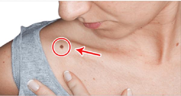 emberre veszélyes papillomavírus gyógymódok emberi parazita tabletták ellen