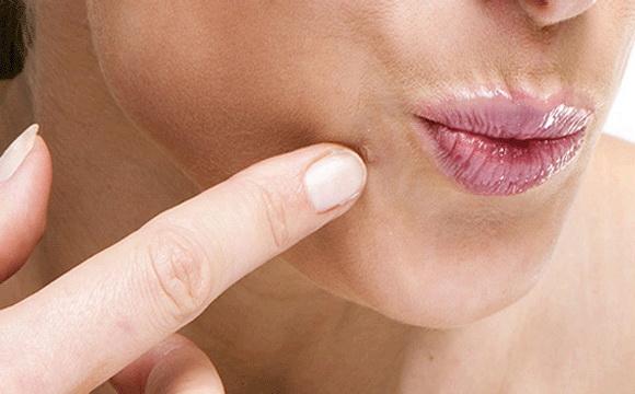 a condyloma tünetei nőknél