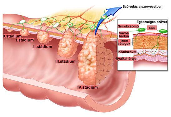 Vastagbélrák szakaszai és tünetei