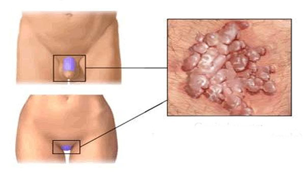 hpv társult betegség hpv nonvalent vakcina