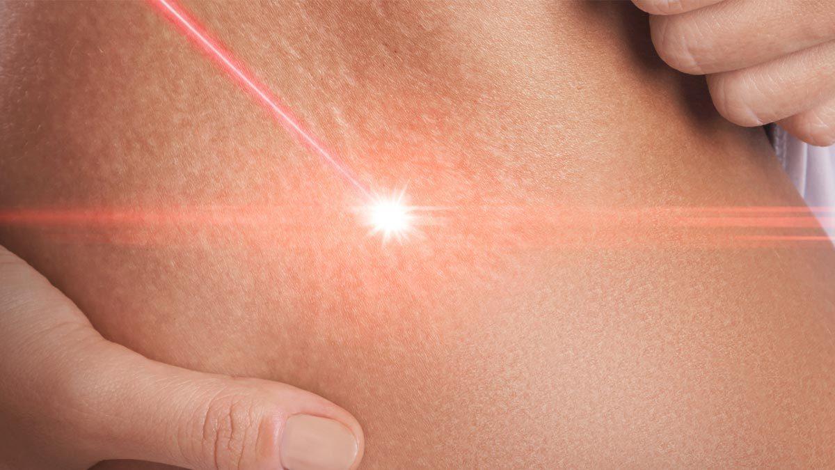 A humán papillomavírus hatékony kezelése - Szemölcsök