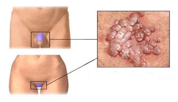 fokális intraductalis papilloma nemi szemölcsök eltávolítása intim helyeken volgograd