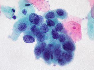 papillomavírus sejt kenet