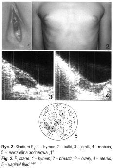 hpv magas kockázat és terhesség