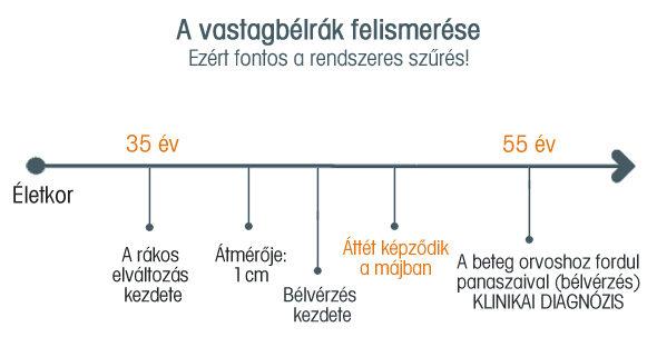 szemölcsök, ahol lehetnek hrvatski jezik nyelvtan 6 razred vjezbe