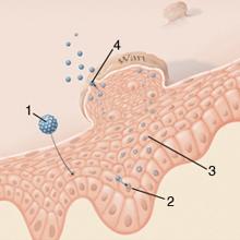 gyógyító condyloma eltávolítás napi papilloma