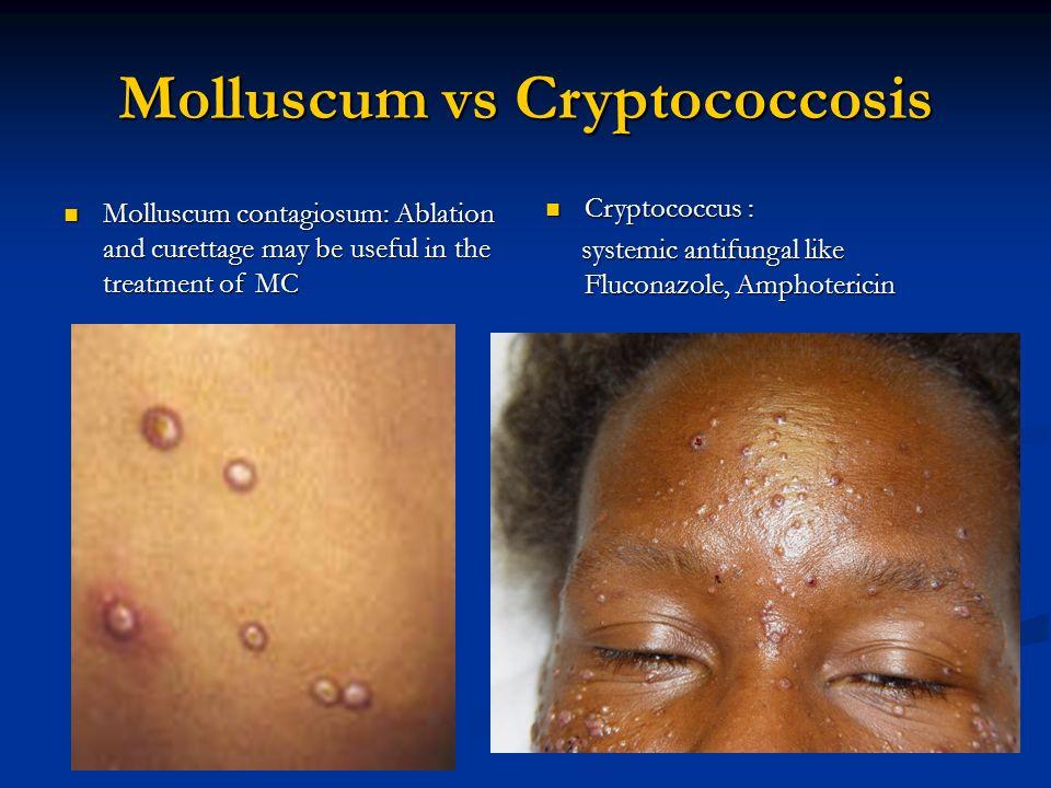 molluscum contagiosum vagy condyloma