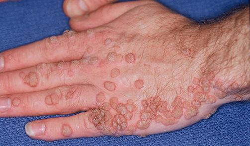 emberi papillomavírus fertőzés érdekes tények miért nyikorognak a férgek?
