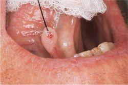mit kell tenni a papillomavírus ellen hpv vírus icd 10