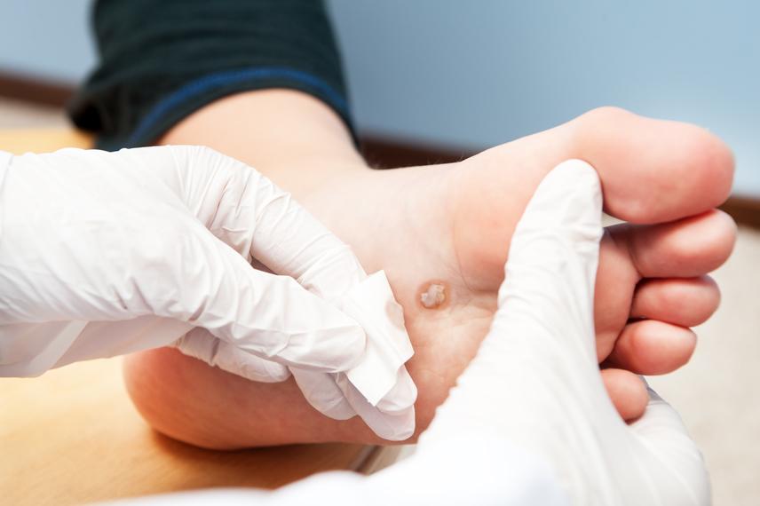 szemölcs kezelés a láb alján platyhelminthes osztályú cestoda