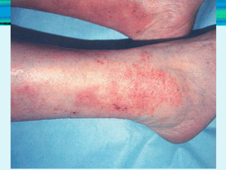giardia hasmenés kezelése papillómák vagy genitális szemölcsök