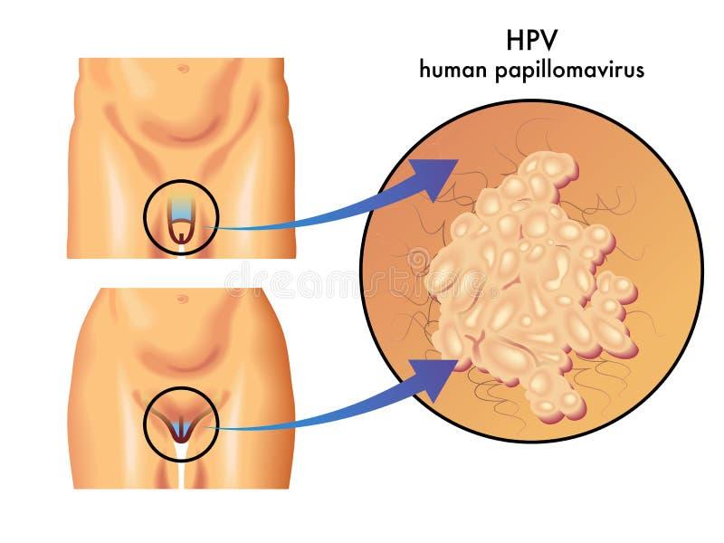 papilloma virus italiano fergek kimutatási szint