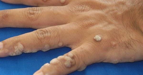 milyen gyógyszereket alkalmaznak a paraziták ellen