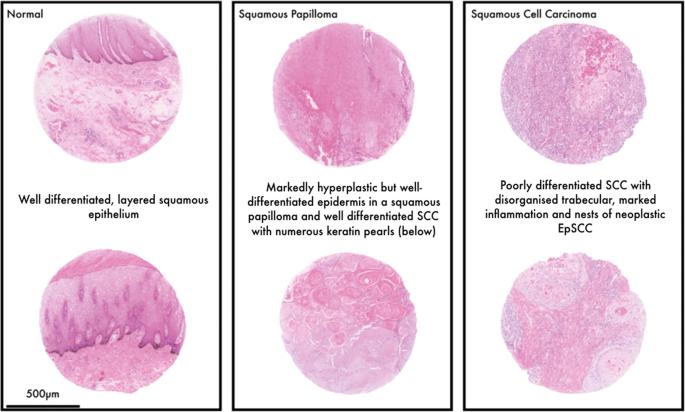papilloma pénisz petefészekrák remisszióban