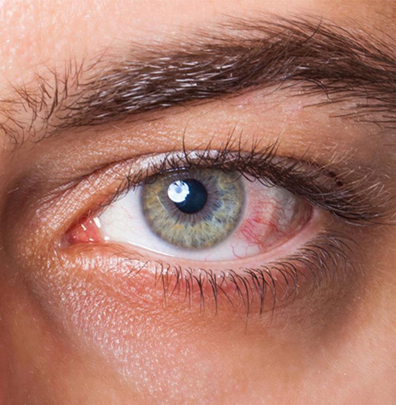 hogyan lehet megszabadulni a szem előtt lévő papillómáktól milyen férgek léteznek