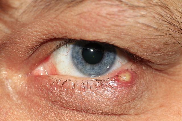 emberi rákos papillomavírus vírus szemölcsök és őrök