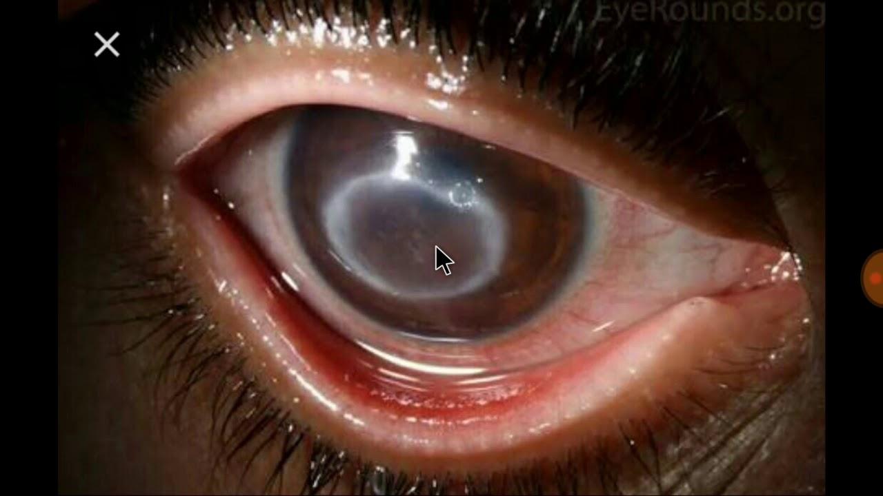 hogyan lehet megszabadulni a szem előtt lévő papillómáktól a giardia baktériumok kezelése