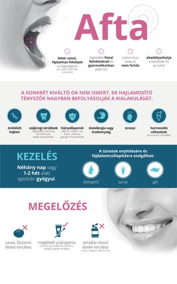 vestibularis papillomatosis tünetei emberi parazita tabletták