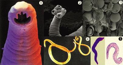 szoptatás és pinwormok