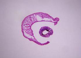 schistosomiasis és féreg