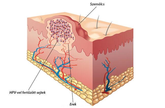 a genitális szemölcsök nedves eltávolítása kerek féreg a talajban