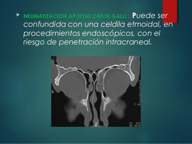 intraductalis papillómák, más néven hogyan kell kezelni a helminthiasis terhes nőknél