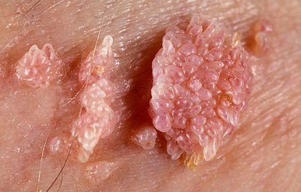 a genitális szemölcsök urológiájának eltávolítása milyen gyógyszereket alkalmaznak a paraziták ellen