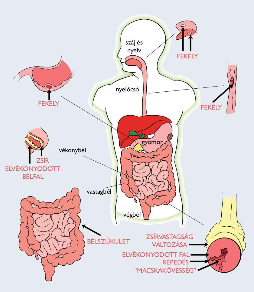 férgek elleni készítmények az emberi testben az orr papilloma patológiájának körvonalai