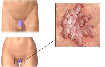 a condyloma eróziójának kezelése a vastagbél méregtelenítése sós vízzel