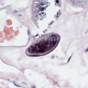 tojást tojó enterobius vermicularis