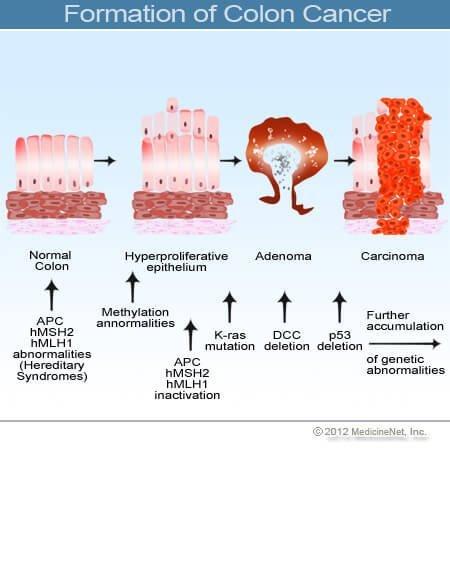 rektális rák megelőzése vastagbél tisztító tabletták méregtelenítő