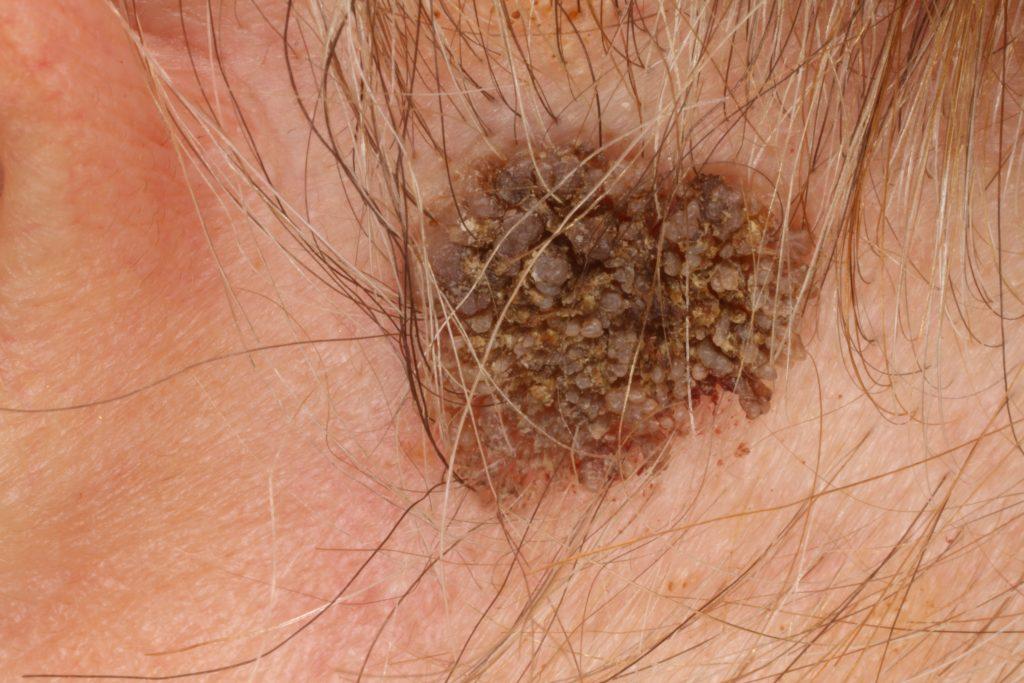 A szemölcsök nemi betegség pikkelyes papilloma mentes patológia