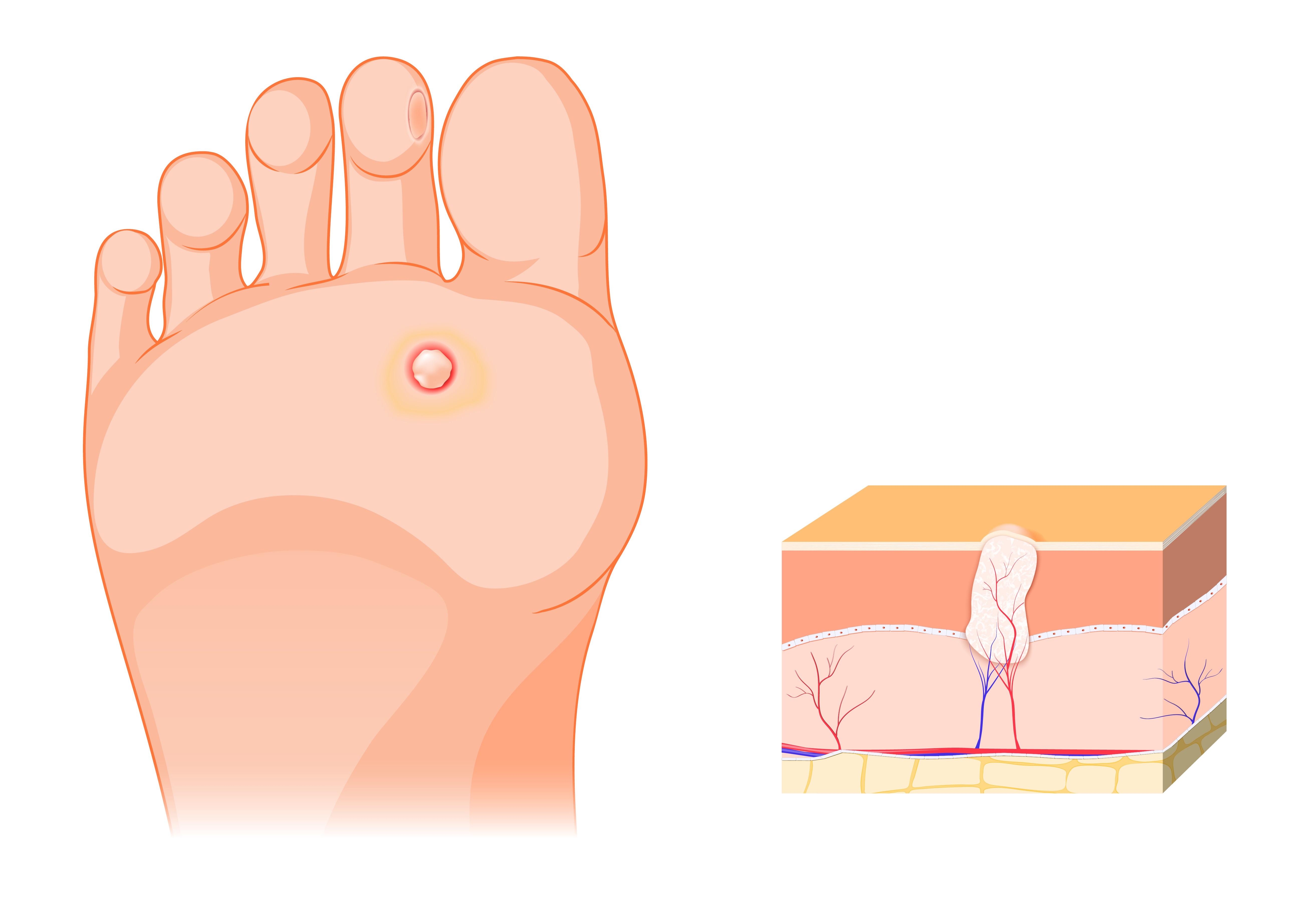 szemölcsök jelennek meg a nemi szervek területén