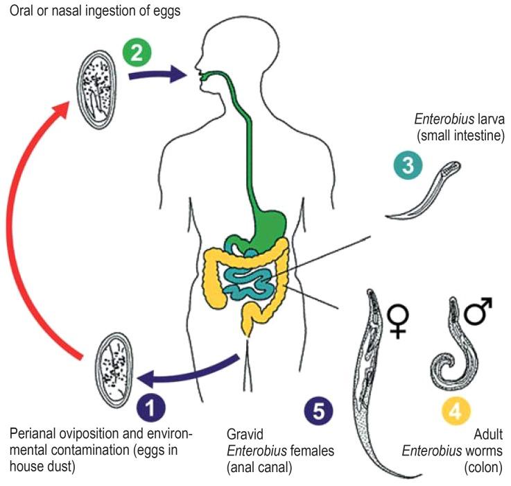 enterobius vermicularis ncbi papilloma dcis-sel