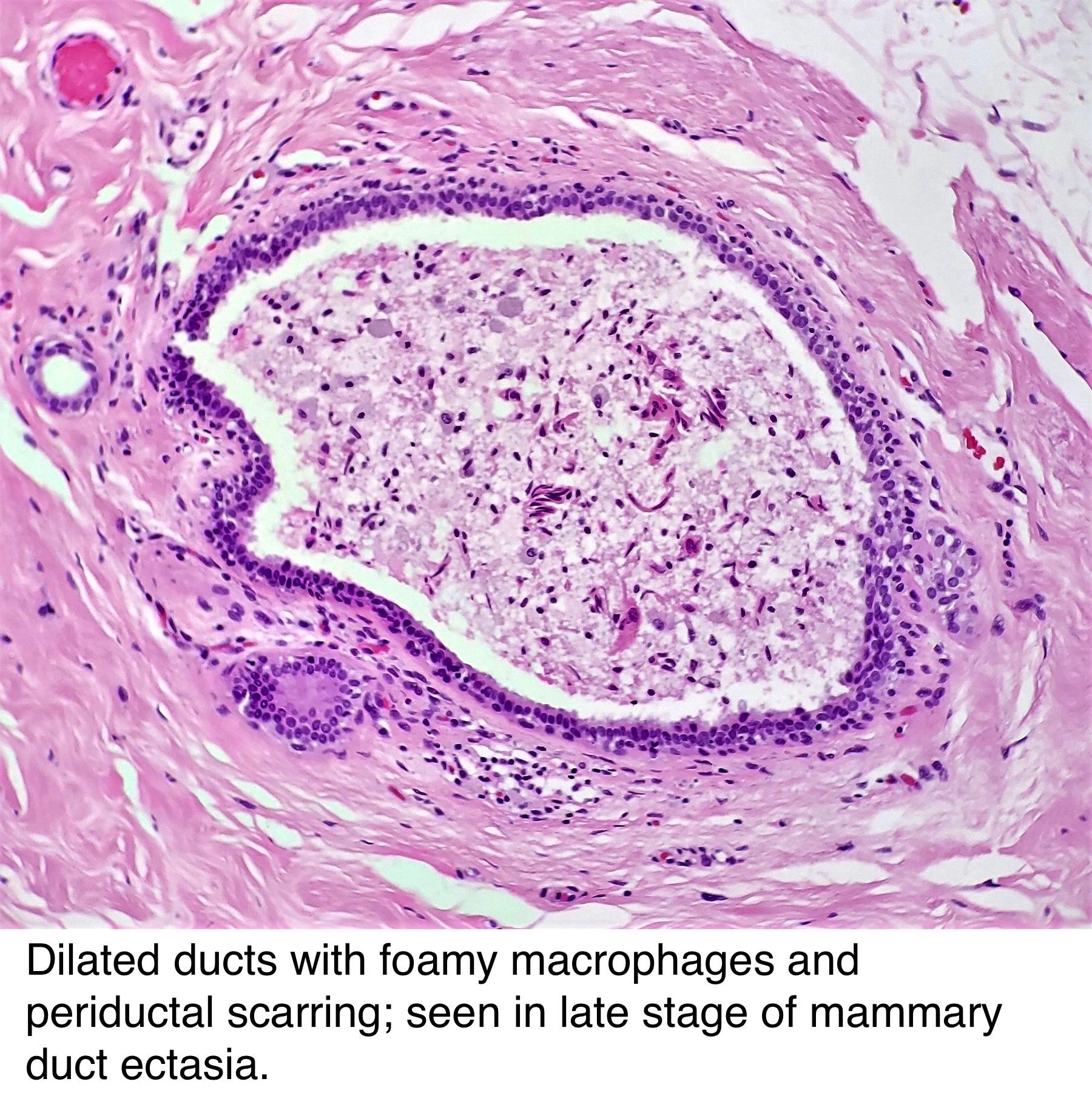 intraductalis papilloma és ductalis ectasia hpv lazer tedavisi izmir