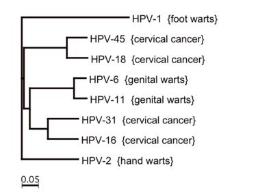 vese papilláris tumor nemi szemölcsök kezelése kenőccsel