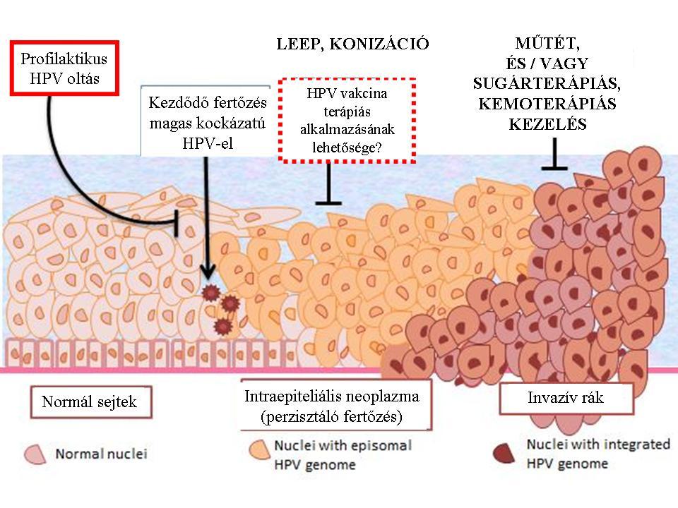 hpv vakcina rák kezelésére emberi férgek a széklet kezelésében