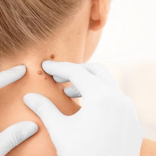 hpv bőrrel való érintkezés