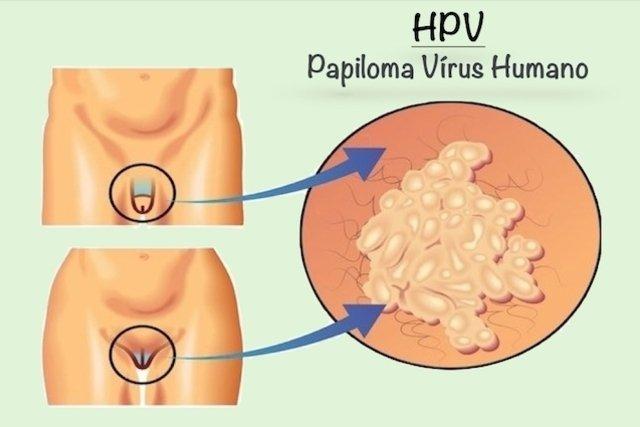 az emberi papillomavírus azt jelenti