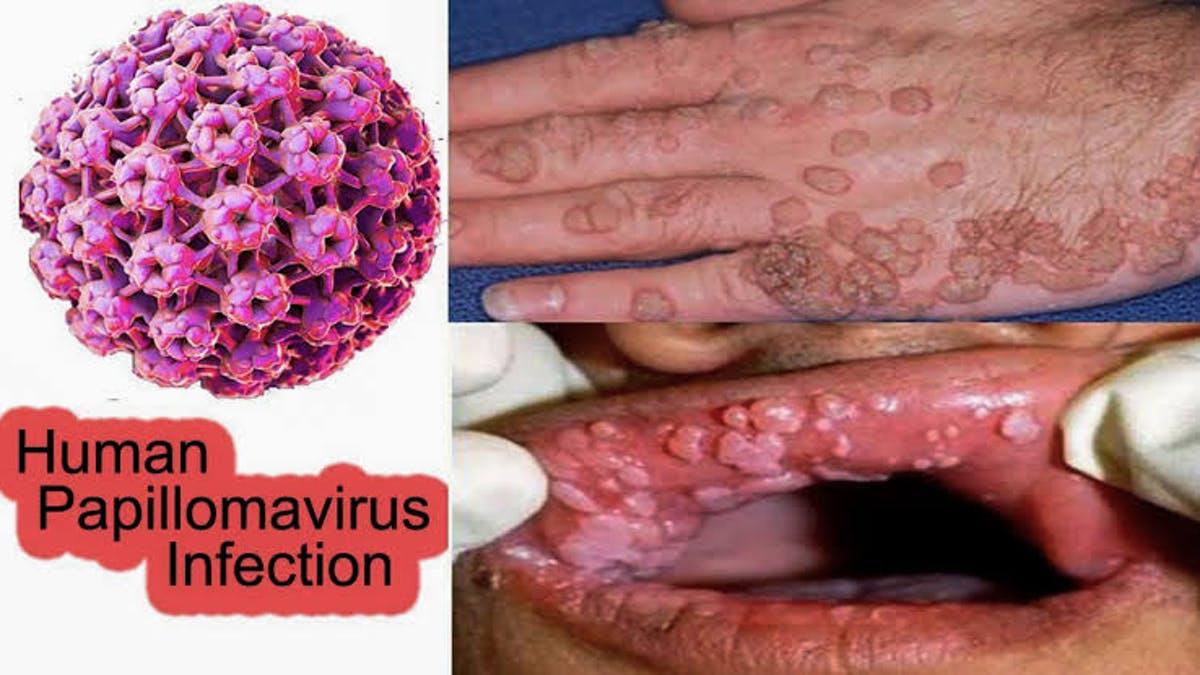 hosszú vékony férgek emberi parazita tabletták gyógyszerei