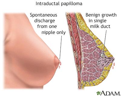 intraductalis papilloma be