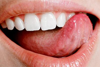 Az emberek 80%-a megfertőződik HPV-vel életében: ezek a legelső tünetek - Egészség   Femina