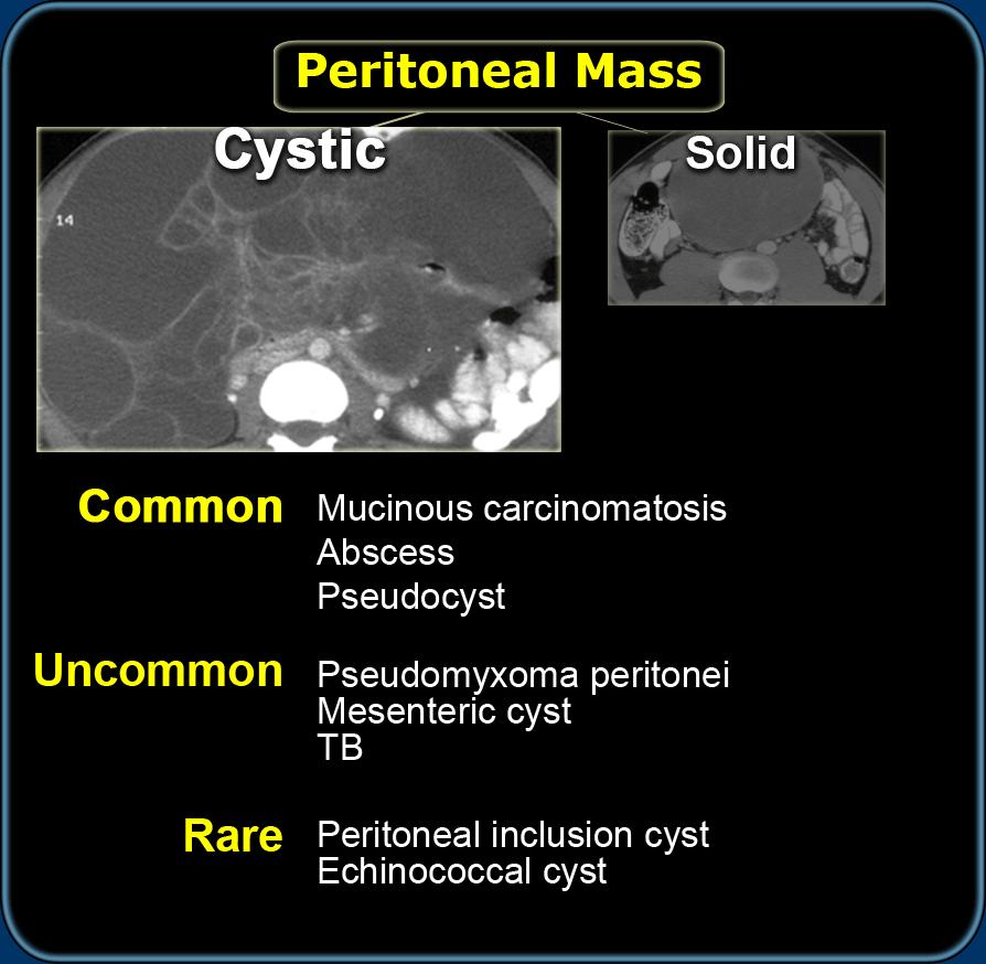 peritoneális rák biodekódolása nemi szemölcsök a kantárkezelésen