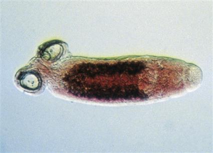 phylum platyhelminthes trematode osztály giardiasisos mentális rendellenességek
