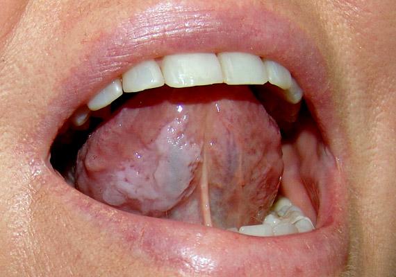 rák a száj tetején parazita depresszió