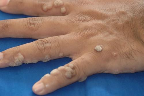 a condyloma kezelés diagnózisa megelőző tabletták az enterobiosis kezelésére