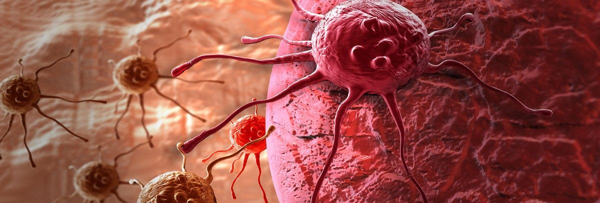 vastagbél rák