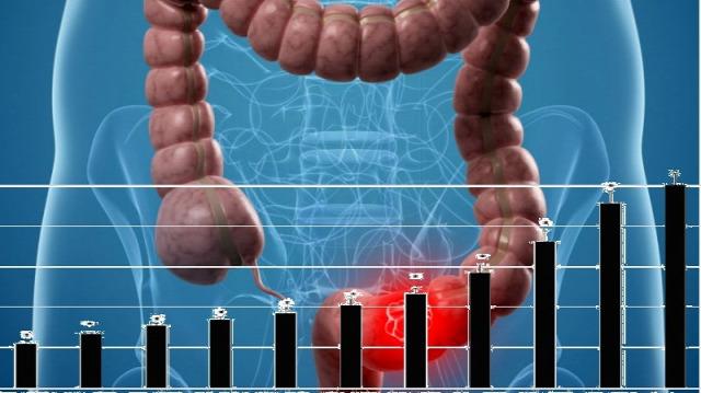 vastagbélrák nyirokcsomók túlélési aránya